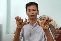 First 'tree man' in Vietnam
