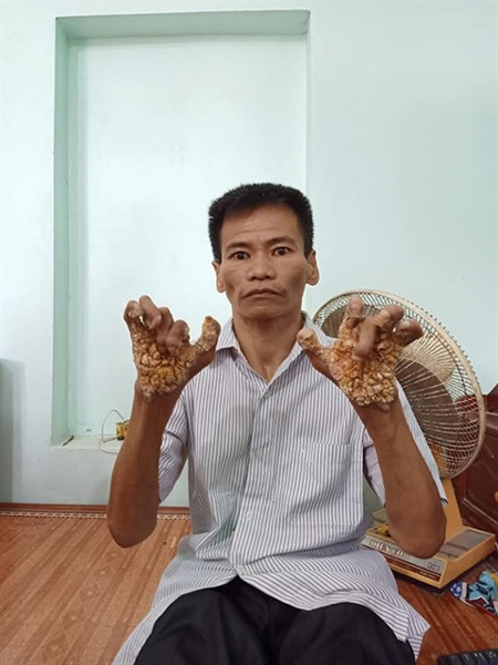 First 'tree man' in Vietnam