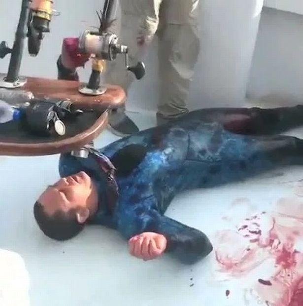 Bị cá mập cắn nham nhở, người đàn ông thoát chết kỳ diệu