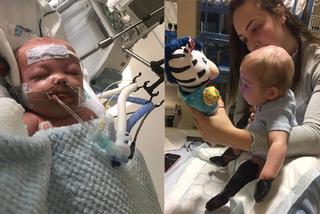 Bé trai 11 tháng rụng hết tay, chân sau 2 ngày viêm họng