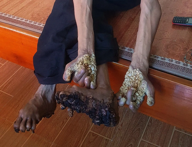 Two treeman syndrome cases reported in Vietnam
