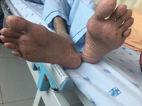 Hy hữu: Người đàn ông Việt suy kiệt cơ thể, suýt tử vong vì thói quen kỳ lạ