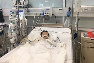 Bé trai 2 tuổi hỏng gan, nguy kịch vì sai lầm của cha mẹ khi dùng thuốc hạ sốt