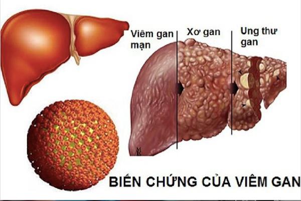 Bệnh viêm gan B - Dấu hiệu, cách phòng và điều trị