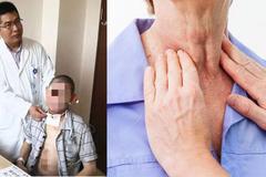 Người đàn ông cùng lúc mắc 2 ung thư giai đoạn cuối do thói quen từ thời trẻ