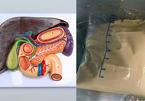 Người đàn ông 37 tuổi suýt tử vong vì viêm tụy, bác sĩ cảnh báo 6 điều cấm kỵ