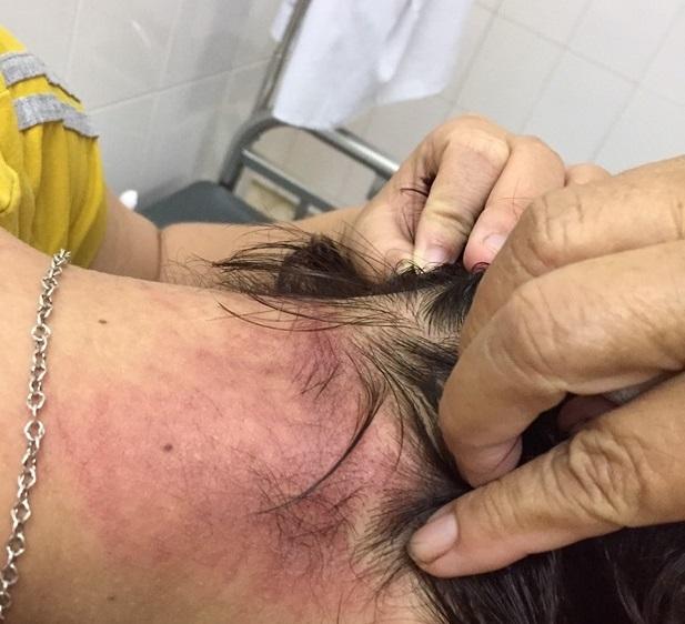 kiến ba khoang,côn trùng,bệnh viện Sài GÒn,Thủ Đức