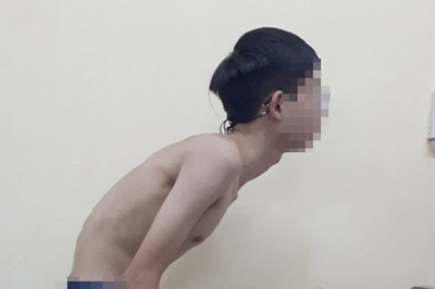Mới 22 tuổi, nam thanh niên Hà Nội đã gù như cụ ông