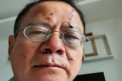 Việt kiều Đức bị đánh hội đồng phải nhập viện ở Sài Gòn
