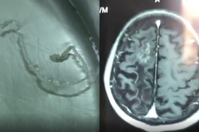 Người đàn ông đau đầu 30 năm, bác sĩ lôi ra sinh vật 10cm trong não
