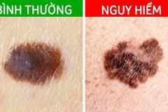 5 tín hiệu từ nốt ruồi cảnh báo ung thư đang tiềm ẩn dưới làn da
