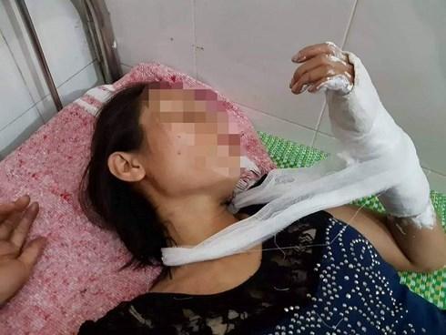 Những vụ bạo hành vợ tàn nhẫn trước mặt con trẻ