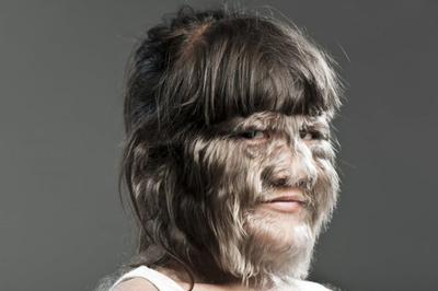 16 trẻ bất ngờ hoá 'người sói' sau uống thuốc trào ngược dạ dày