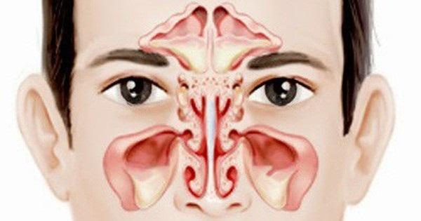 Người đàn ông mù mắt vì biến chứng viêm xoang ăn lan lên não