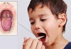 Những điều cần biết về bạch hầu - căn bệnh có thể gây tử vong trong 6 ngày