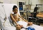Thiếu niên 17 tuổi nặng 30 kg được ghép phổi với chi phí 5 tỉ đồng