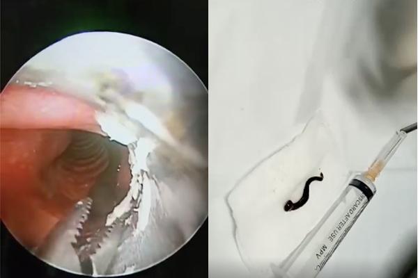 Nam thanh niên tưởng viêm họng, bác sĩ gắp ra 'thủ phạm' bằng ngón tay