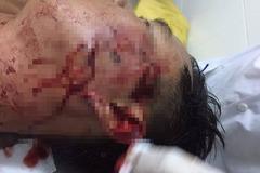 Thanh niên cầm ly bia đánh đại uý công an ở Sóc Trăng bị khởi tố