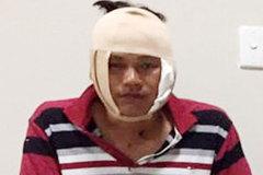 Đại uý Công an ở Sóc Trăng bị đánh thương tích trong quán nhậu