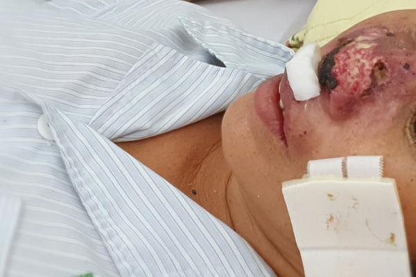 Hàng chục người nhập viện Bạch Mai do nhiễm vi khuẩn bị lãng quên