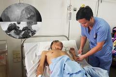 3 tháng mệt mỏi, bác sĩ phát hiện mủ đặc quánh trong phổi người đàn ông
