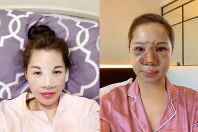 Những sao Việt gây choáng khi công bố hình ảnh 'đập mặt xây lại'