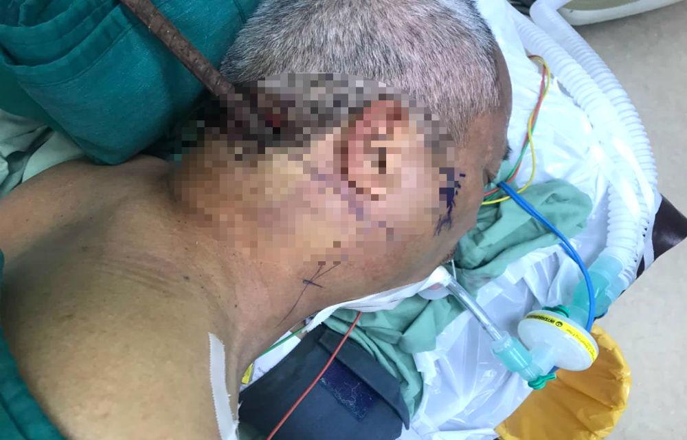 Người đàn ông ở Đắk Lắk té ngã bị cây sắt xuyên từ cổ qua hàm