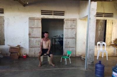 Vợ nghèo khóc nghẹn xin cứu chồng mắc bệnh Lupus ban đỏ