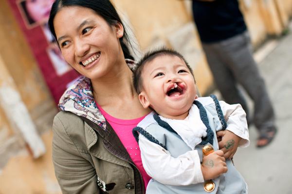 Aqua Việt Nam chung tay phẫu thuật nụ cười cho 80 trẻ