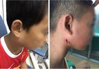 Nghệ An phát hiện 3 trẻ em mắc bệnh Whitmore