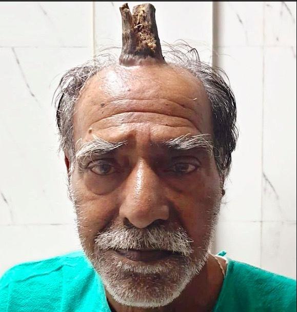 mọc sừng,sừng quỷ,Ấn Độ,lão nông