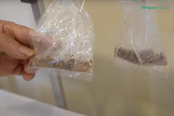 'Cứu' quả thận mắc sỏi san hô 7cm không cần mổ mở