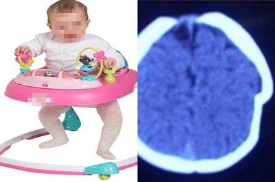 Mẹ bất cẩn, hộp sọ bé gái 8 tháng bị lún sâu