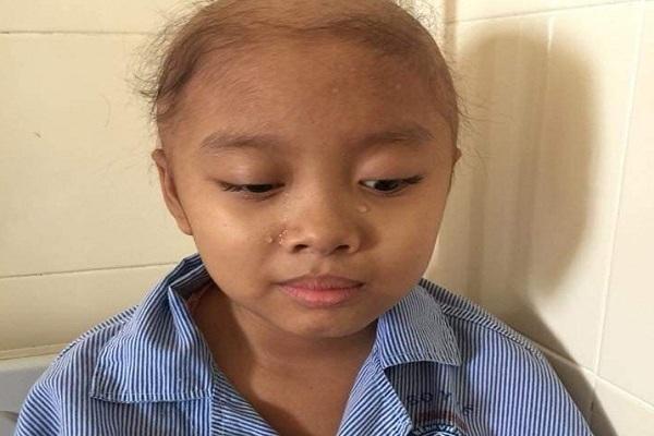 Bạn đọc tiếp thêm động lực giúp bé Thúy Vân chữa bệnh