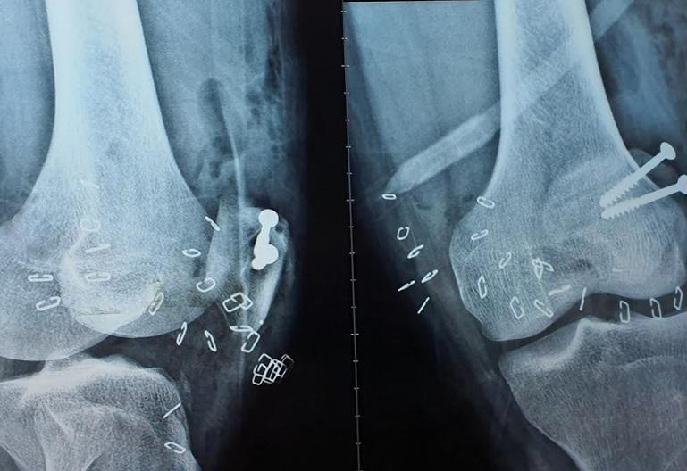 Người đàn ông miền Tây suýt mất chân vì chân vịt ca nô chém