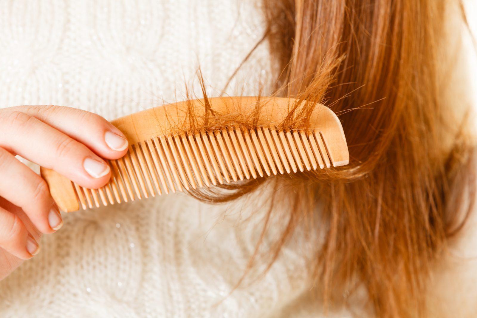 nguyên nhân rụng tóc,Rụng tóc