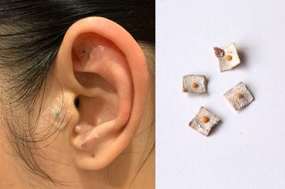 Bất ngờ trước phương pháp giảm cân nhanh bằng dán hạt giống lên tai