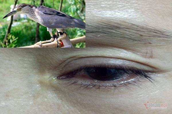 Bị chim mổ khi đặt bẫy, người phữ nữ Hà Tĩnh nguy cơ khoét bỏ mắt
