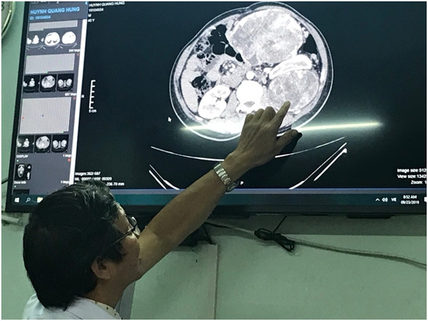 Doctors at HCM City's Thong Nhat ospital remove 2.4kg tumour