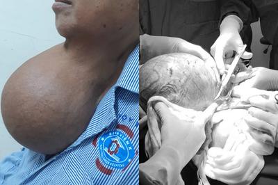 Người phụ nữ khắc khổ mắc ung thư, phải dùng tay đỡ khối u suốt 20 năm