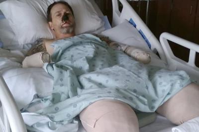 Người đàn ông mất 4 bộ phận trên cơ thể vì sở thích cho chó cưng liếm mặt