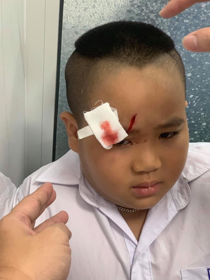 Hiếu Hiền đau xót khi con trai bị bạn xô ngã phải khâu 20 mũi