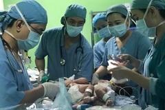 Cặp song sinh dính liền chung 1 lá gan được phẫu thuật tách rời