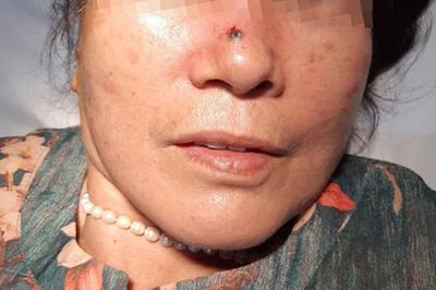 Mụn ở mũi chảy máu khi rửa mặt, không ngờ mắc ung thư