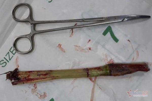 dị vật,phẫu thuật,cây cỏ voi,hà tĩnh