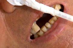 Nhập viện cấp cứu vì nuốt phải răng giả trong khi ăn cháo