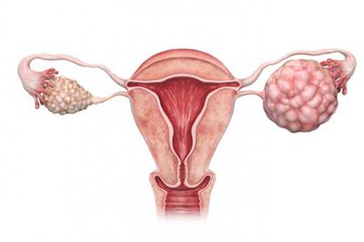 Căn bệnh ung thư di truyền khiến 3 chị em gái ở Hà Nội cùng mắc