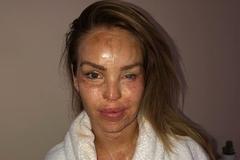 MC truyền hình bị tàn phá gương mặt vì bạn trai tạt axit
