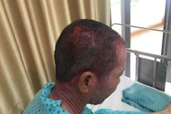 Người đàn ông nhập viện cấp cứu vì dùng thuốc nhuộm tóc