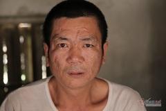 Cựu quân nhân mắc bệnh tâm thần ở Hà Tĩnh bị bỏ quên chế độ